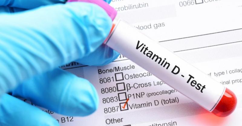 Global Vitamin D Tests Market Industry Data Analysis 2020-2025