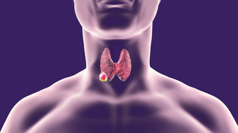 Anaplastic Thyroid Cancer Drug Market