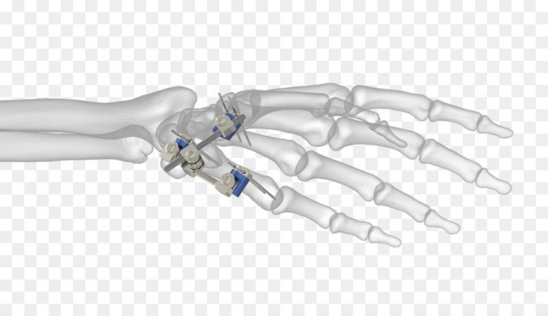 Trauma Fixation Devices And Equipment Market 2020 Precise