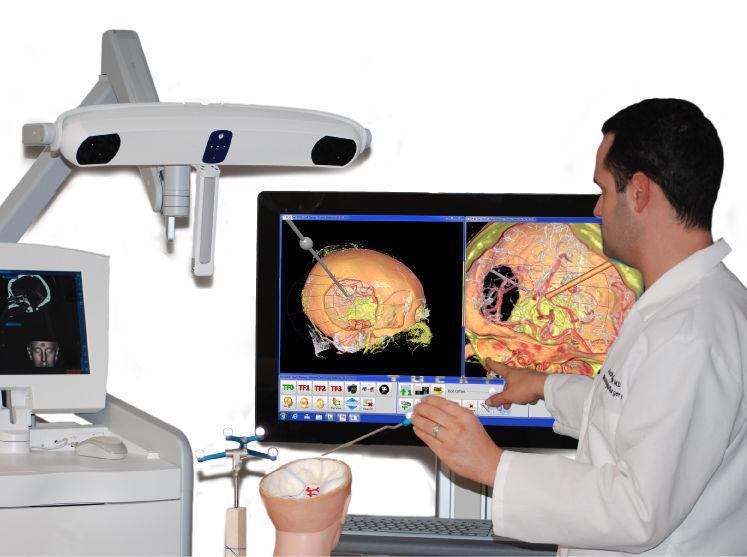 Neurosurgery Surgical Navigation System Market