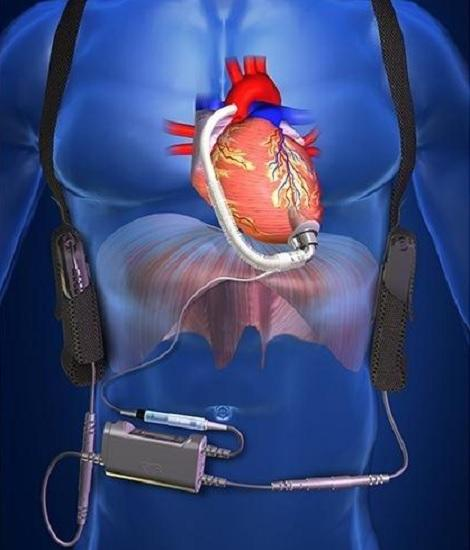 Congestive Heart Failure (CHF) Treatment Devices Market to Hit