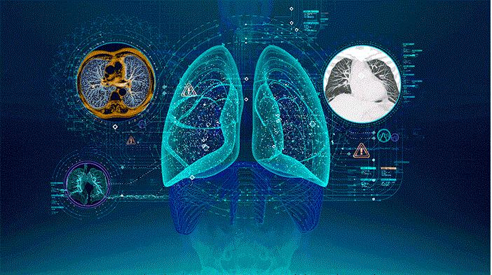 Artificial Intelligence in Healthcare Diagnosis Market