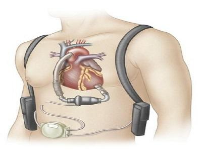 Global Implantable Ventricular Assist Devices (VAD) Market