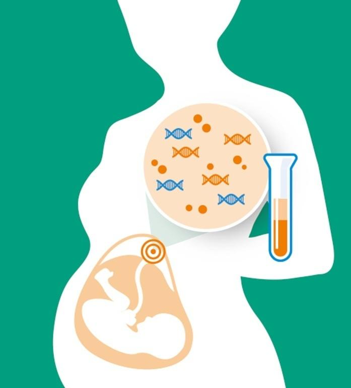 Noninvasive Prenatal Testing Market Report Global Key Players, Types, Applications, Countries by Forecast Year 2020-2027 | GE Heal
