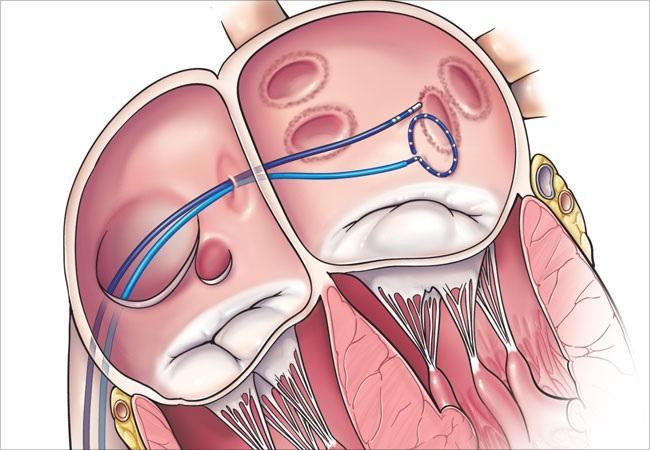Atrial Fibrillation Surgery Market