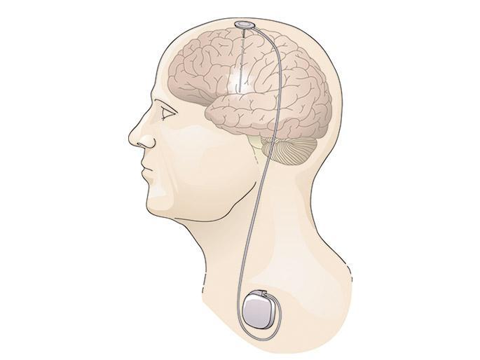 Deep Brain Stimulation Systems market