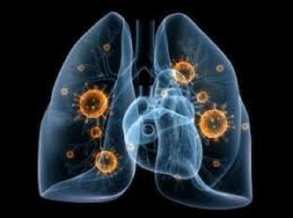 Ventilator-associated Pneumonia (VAP) Market