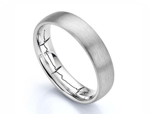 Global Finished Wedding Ring Market Analysis (2020-2025)