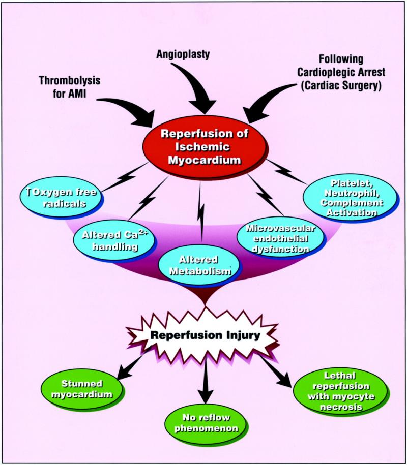 Reperfusion Treatment