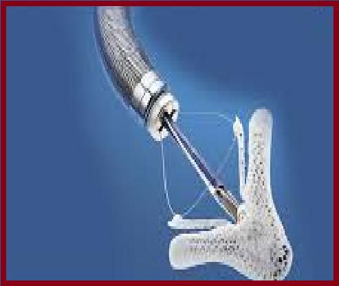 Cardiovascular Device Market Trends and Growth Analysis 2026
