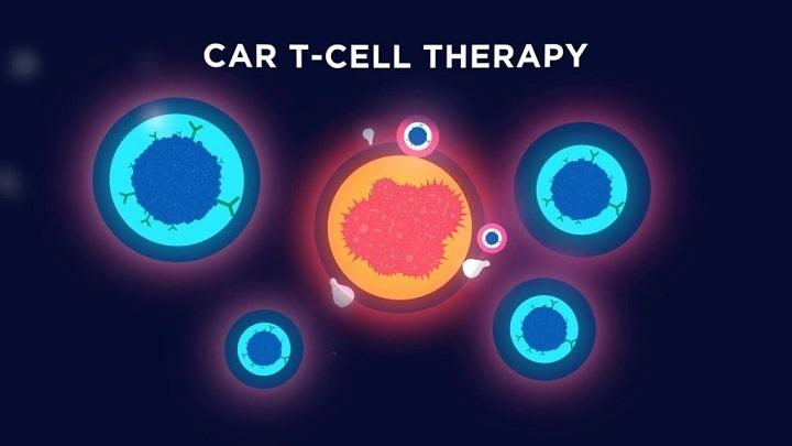 Increase in Incidence of Cancer Expected to Drive Global CAR-T