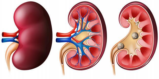 Kidney Disease Market