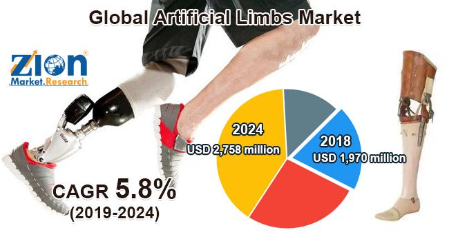 Global Artificial Limbs Market Is Expecting Revolutionary