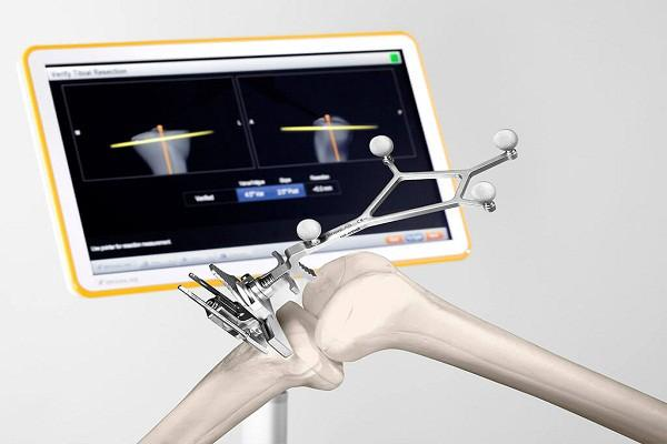 Orthopedic Surgical Navigation Systems Market