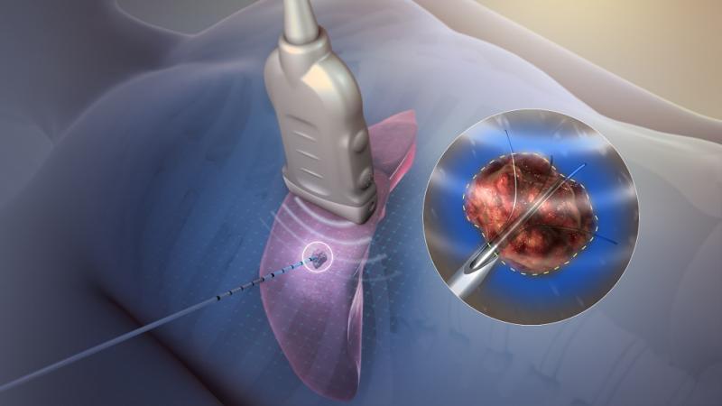Ultrasonic Tissue Ablation System Market