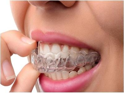 Clear Aligners Market Is Expected To Reach $8.91 Billion by 2030,
