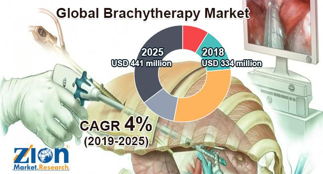 Global Brachytherapy Market Share, Growth, Trends by ZMR: