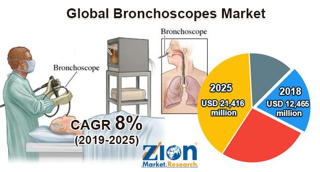 Global Bronchoscopes Market Report | Size, Growth, Demand,