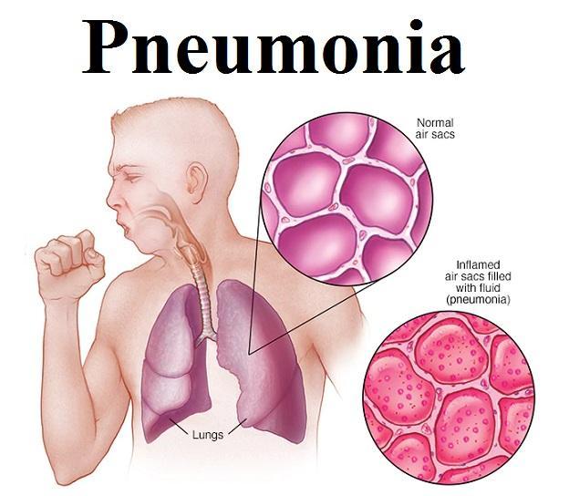 Pneumonia Market