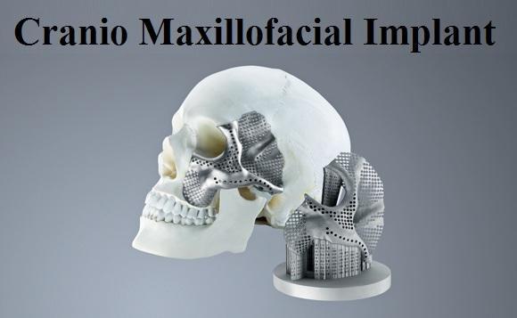 Cranio Maxillofacial Implant Market