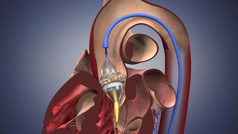 Global Transcatheter Heart Valve Replacement Market Growth
