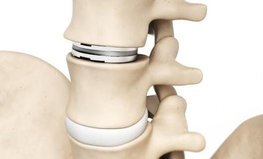 Cervical Total Disc Replacement Device