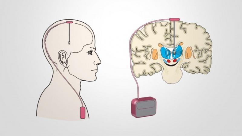 Deep Brain Stimulation in Parkinson's Disease Market
