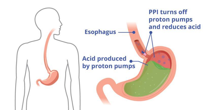 Proton Pump Inhibitors Market