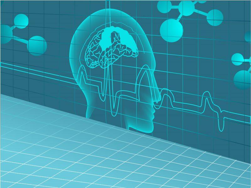 Neurology Devices