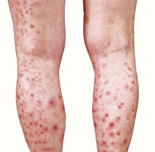 Prurigo Nodularis Treatment