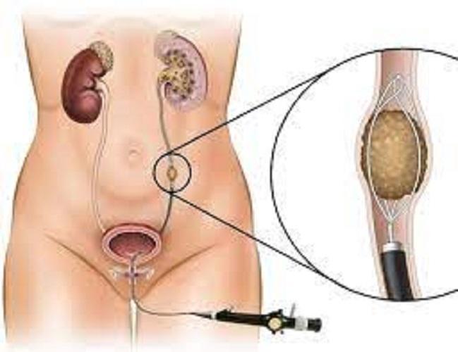 Ureteroscopy Market