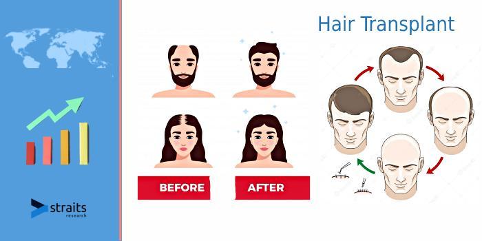 Hair Transplant Market