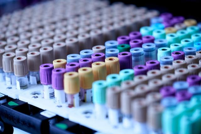 Biobanking Market Projected to Experience Major Revenue Boost