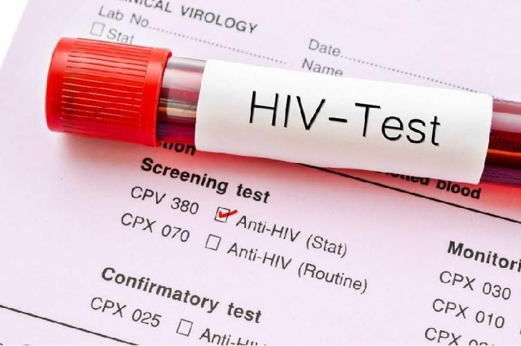 HIV Diagnosis Market