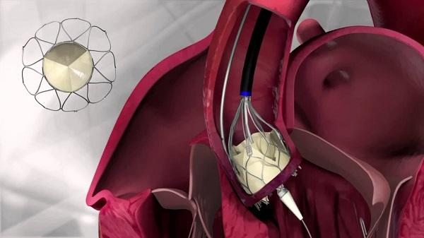 Artificial Tissue Heart Valve Market Introducing New Industry