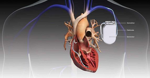 Global Implantable Medical Devices Market Size and Forecast