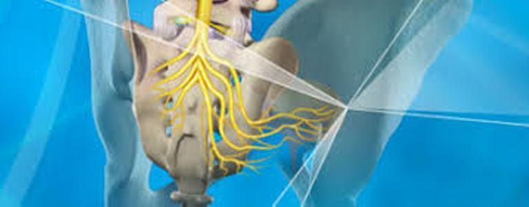 Sacral Nerve Stimulators