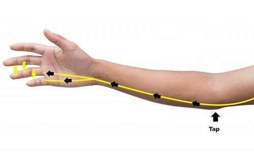 Ulnar Nerve Treatment Market