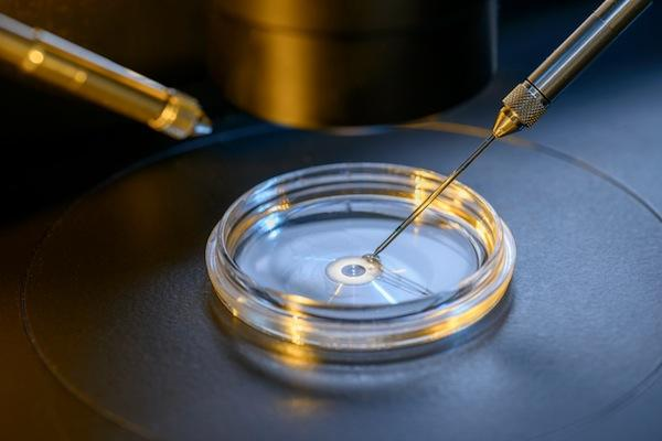 IVF Services Market Demand during 2021-2027   Almana Group