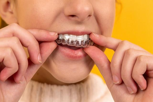Clear Aligners Market : A Deep Dive Analysis of Various Regions