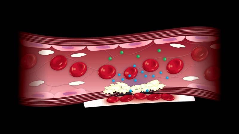 Hemostasis Products