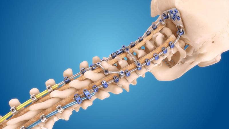 Spine Surgery Product