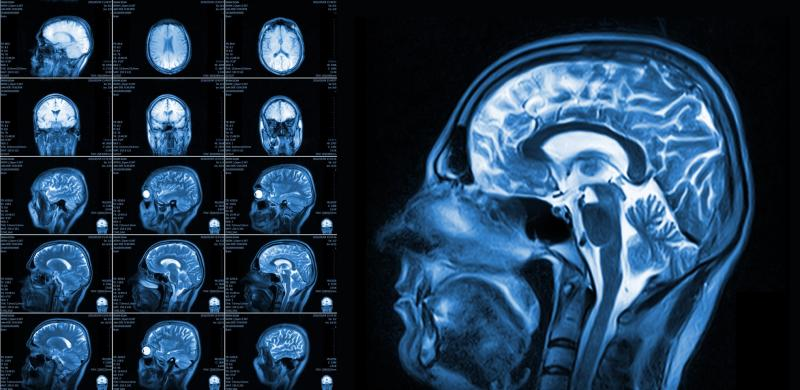 Brain And Neuroimaging Devices Market