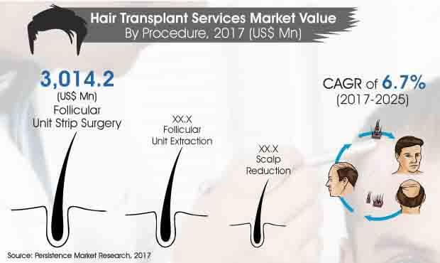 The Hair Transplant Services Market To Inscribe Innovative
